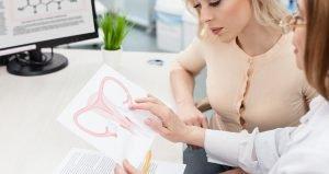 Calcified Uterine Fibroids