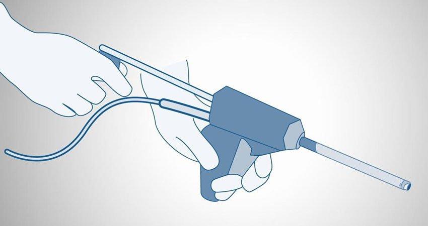Power Morcellator Illustration