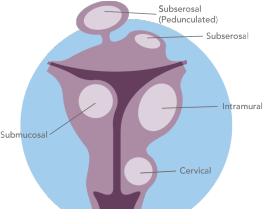 Fibroid Illustration