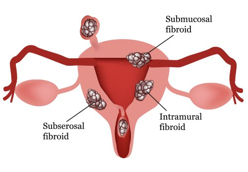 fibroid treatment for different types of uterine fibroids