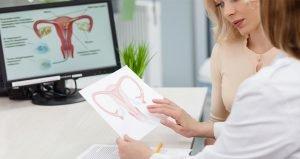 Fibroid treatment options