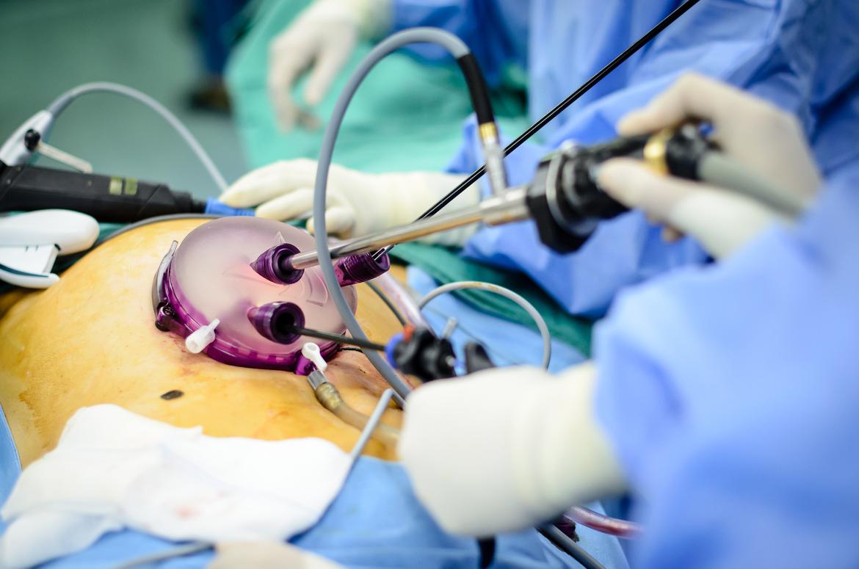 laparoscopic-surgery-fibroid-morcellation